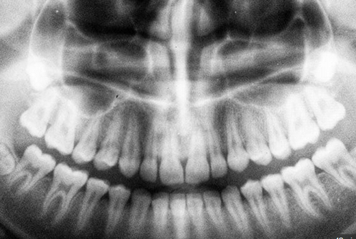 teeth31jul19