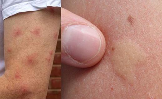 Mosquito-bite-...