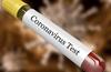 Karnataka reports 93 new coronavirus cases on May 25, two more deaths