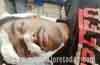 Karkala: Pedestrian critically injured hit by a car